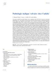Pathologie maligne vulvaire chez l'adulte.pdf